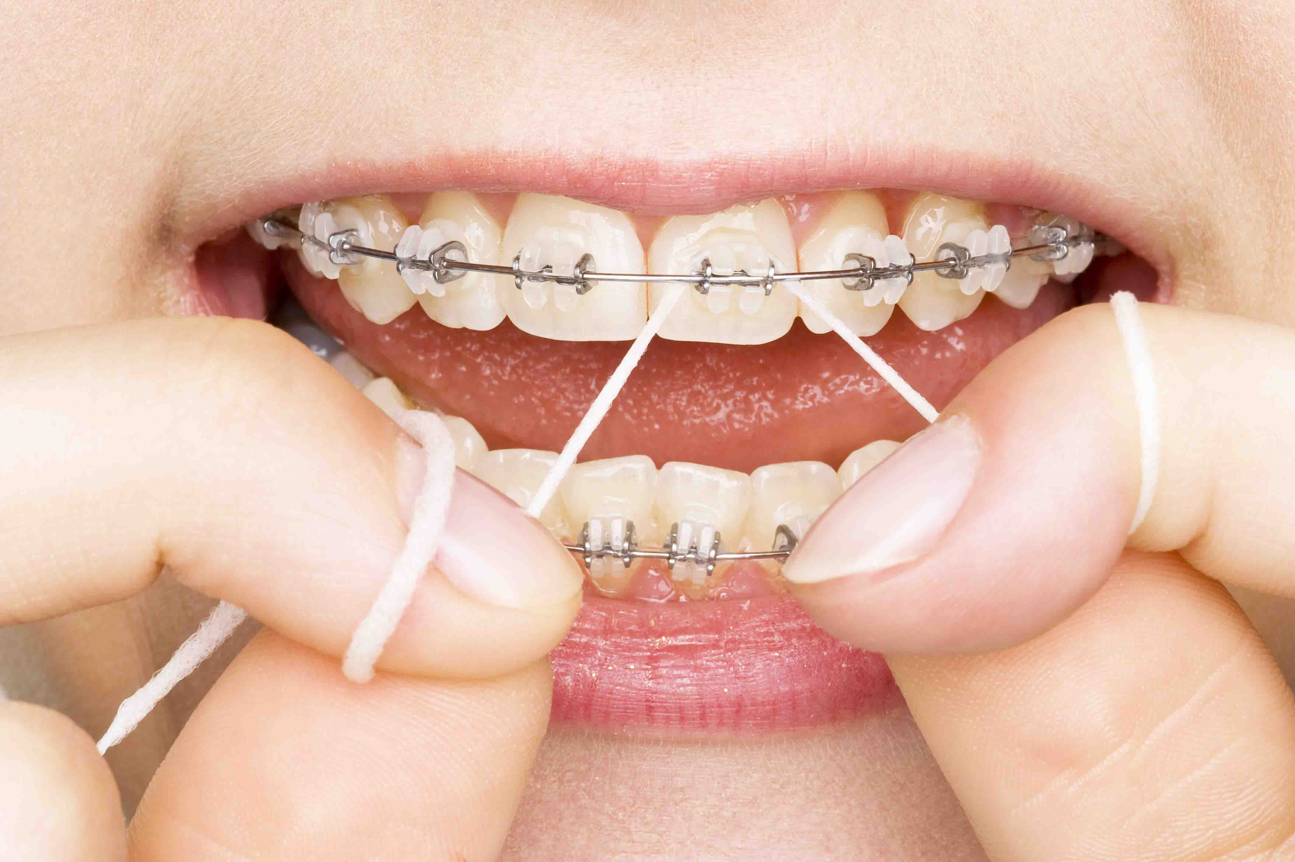 How Often to Visit The Dentist - Dental Clinic in The Colony Texas